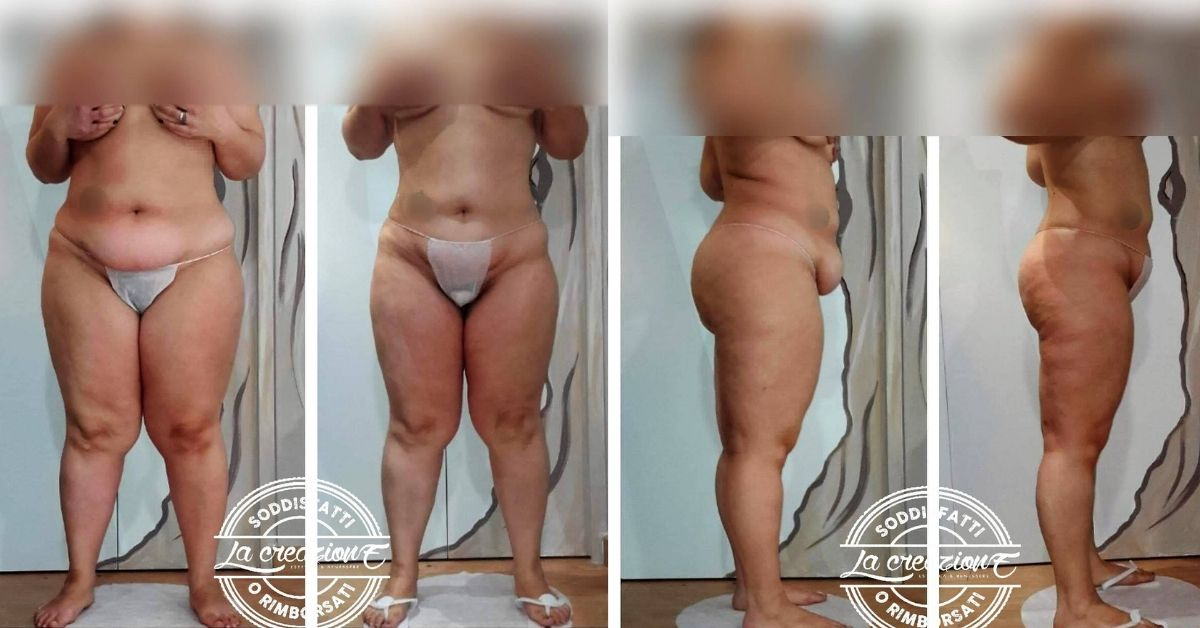 Rachele perde 10 chili, ma sembrano 20
