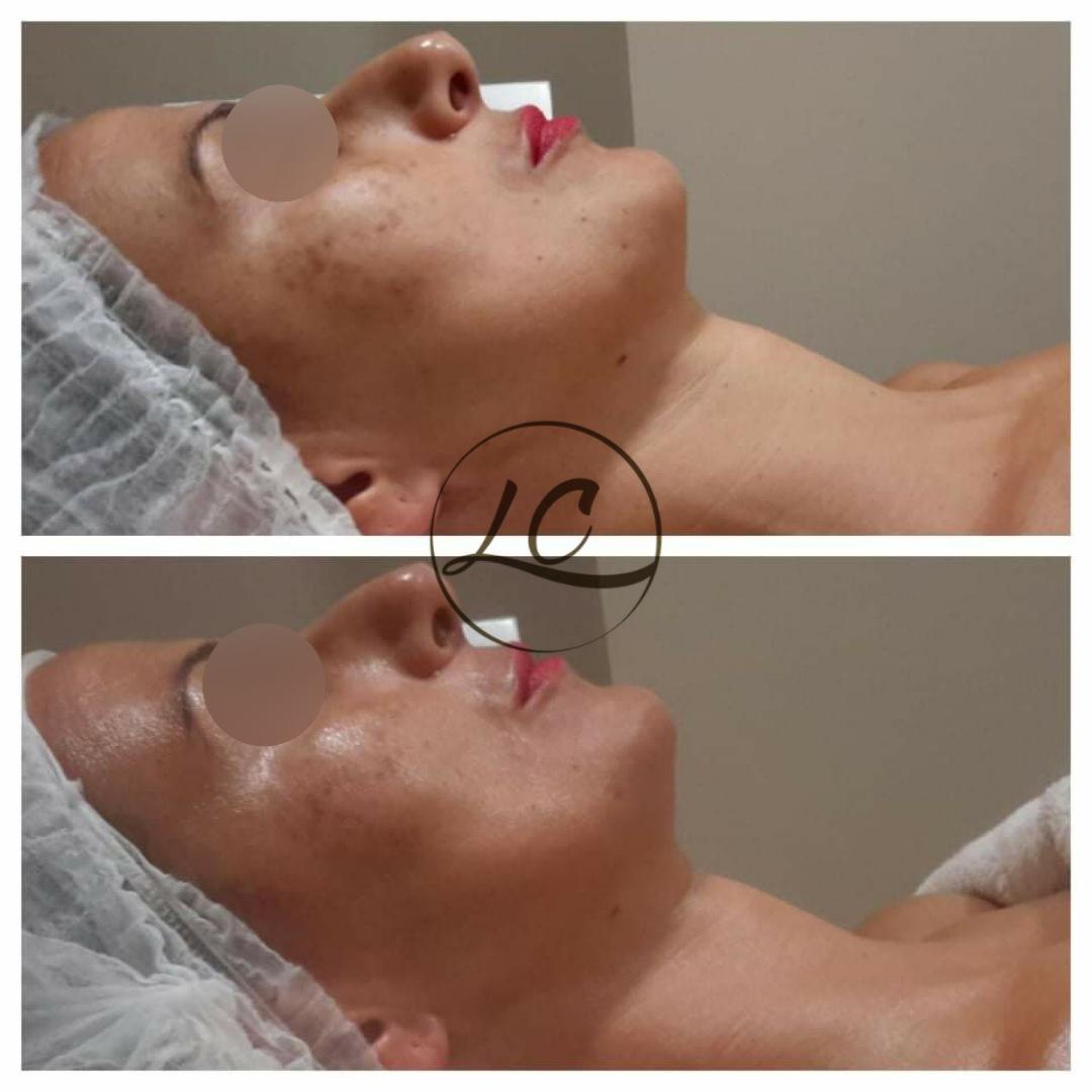 Programma speciale viso - La Creazione Tolentino - Risultati prima e dopo