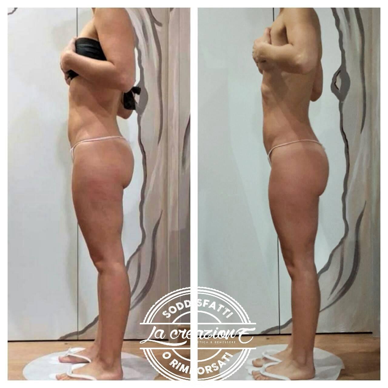 Prima e Dopo BootyUp di Laura Cavarischia - Metodo per il modellamento corpo - Centro La Creazione Tolentino - Modellamento Corpo