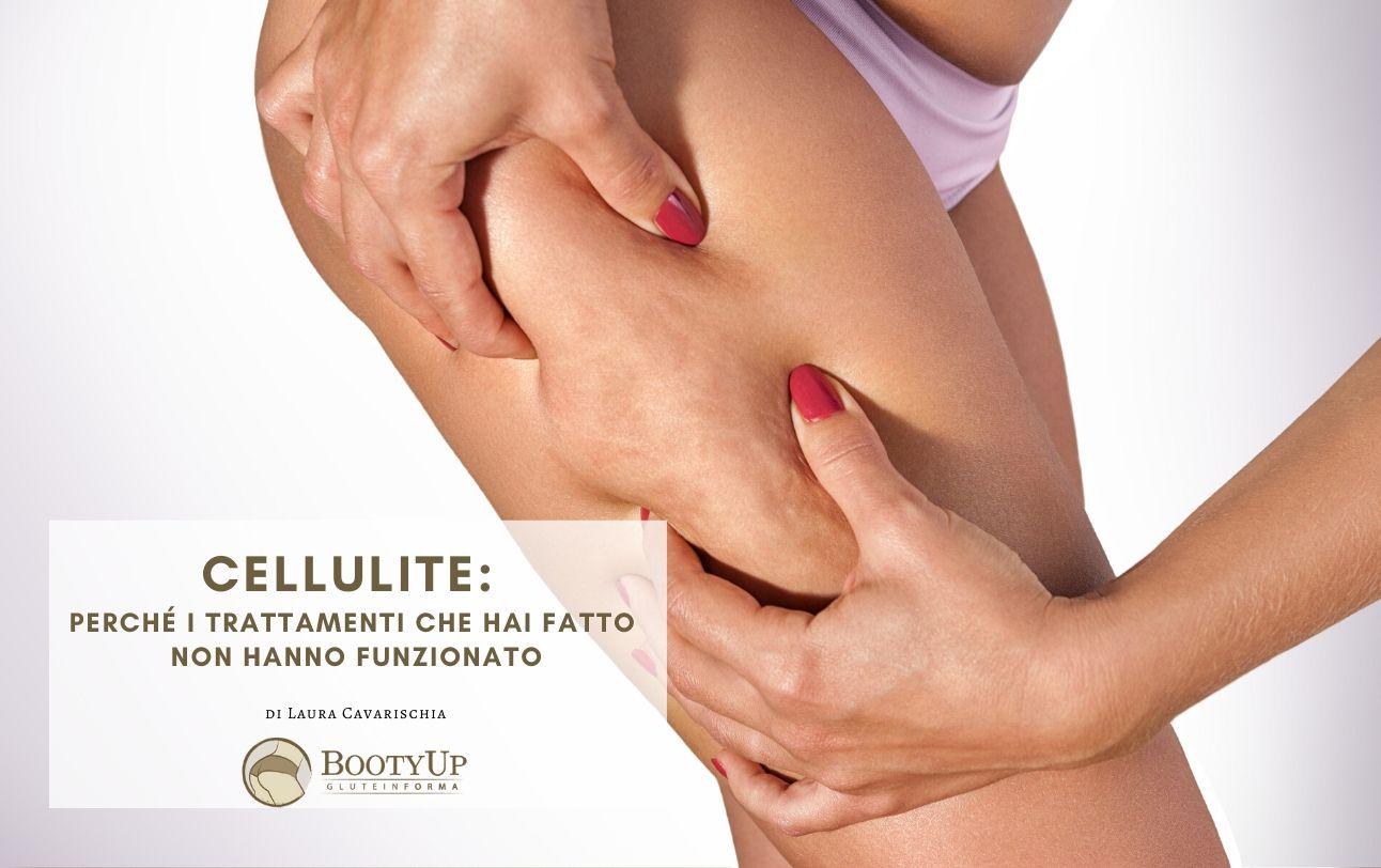 Cellulite: perché i trattamenti che hai fatto non hanno funzionato - La Creazione - BootyUp - Laura Cavarischia